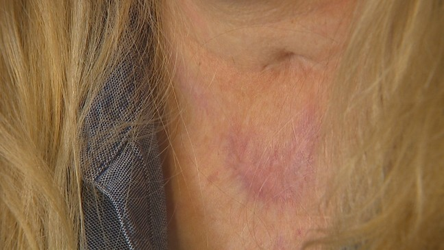 Woman reclaims life 3 years after being set on fire, left